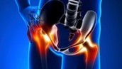 What is Snapping Hip Syndrome and how is it caused?