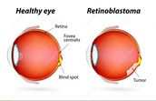 Normal eye vs one with retinoblastoma.