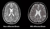 Medical Technology used to Diagnose MS