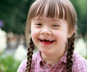 Physical/Mental Impacts of Down Syndrome