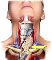 where the thyroid gland is located and what the cancer looks like and what it does to the throat area