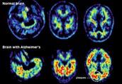 Brain Scan Comparison