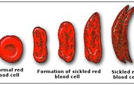 Formation of sickled cells