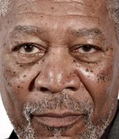 Morgan Freeman has Dermatosis Papulosa Nigra