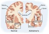 women and alzheimer's