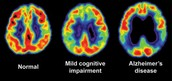 How Alzheimer's affects the brain
