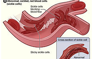 Sickled Blood Cell