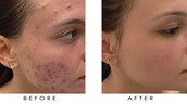 The Truth About Laser Treatment For Acne Scars