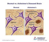 Alzheimer's Disease Plague