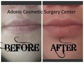 Juvederm for Luscious Lips
