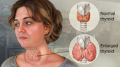 Shows how an enlarged thyroid and a normal thyroid differ in size