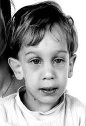 About fragile x syndrome