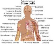 What Are Stem Cells Exactly?