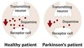 Shart of Neuron Transfer