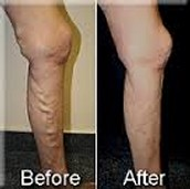Unhealthy legs vs. Healthy ones