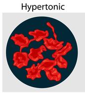 hypertonic solution