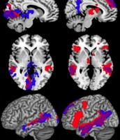 Brain activity between sighted and non-sighted