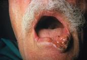 Oral Cancer Symptoms