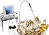 Radiofrequency Procedures