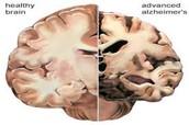 Comparisons of brains