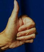 Straight Thumb