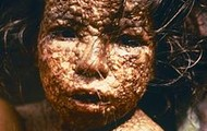 A girl that got infected in africa.