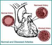 what is heart diseases?