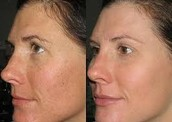 IPL Skin Rejuvenation -  Save 20% on this treatment