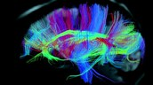 Brain activity while sleeping