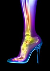 What can happen to your body when you wearing heels?