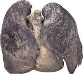 Smoking health effects