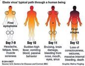 Ebola...the symptoms of!
