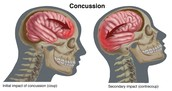 How you can get a concussion