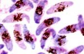 Malaria's affect
