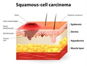 Squamous cell