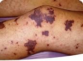 Symptoms of Meningitis!
