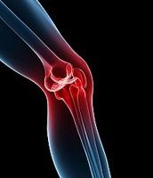 Arthritis from Hemophilia
