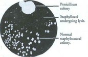 Alexander Fleming's Petri Dish.