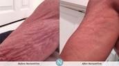 NeriumFirm Body Contouring Cream