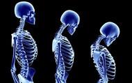 Skeletal Deformities