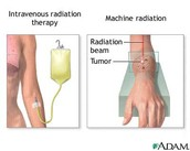 Here shows that they would put a special liquid in your arm before radiation treatment