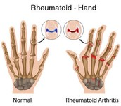Normal hands and Hands with Rheumatoid Arthritis