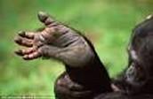 Thumb like toe