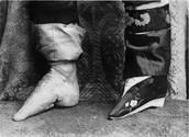 Chinese Foot Binding