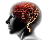 Abnormal brain activity.
