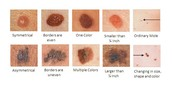 Types of lesions