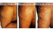 Smallpox Rash Day 3, 5, & 7