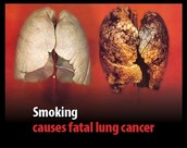 Deadly effect if you smoke