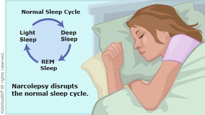 sleep disorder term paper
