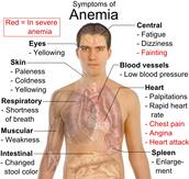 Symptoms of Anemia.